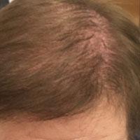 alopecia-androgenetica_1