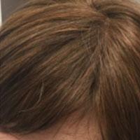 alopecia-androgenetica_2