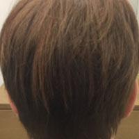 alopecia-androgenetica_4