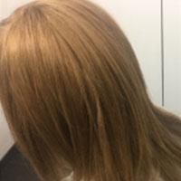 alopecia-areata2