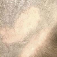 alopecia-areata3