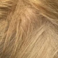 alopecia-areata4
