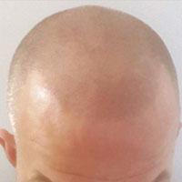 haarpigmentatie_2